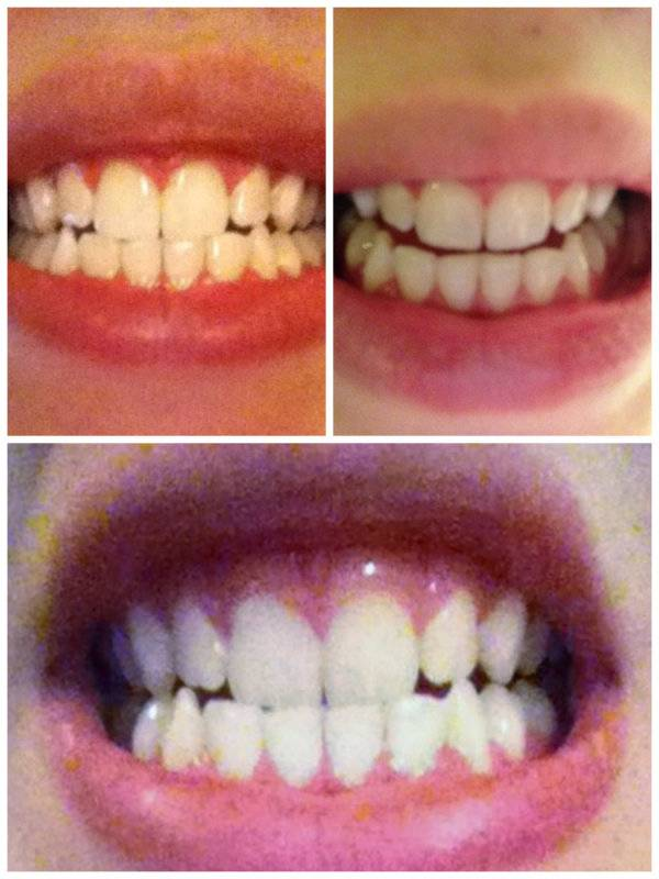 Smile Brilliant Reviews (Before and After) - UL: Before | UR: After 4 Treatments | LOWER: After 8 Treatments